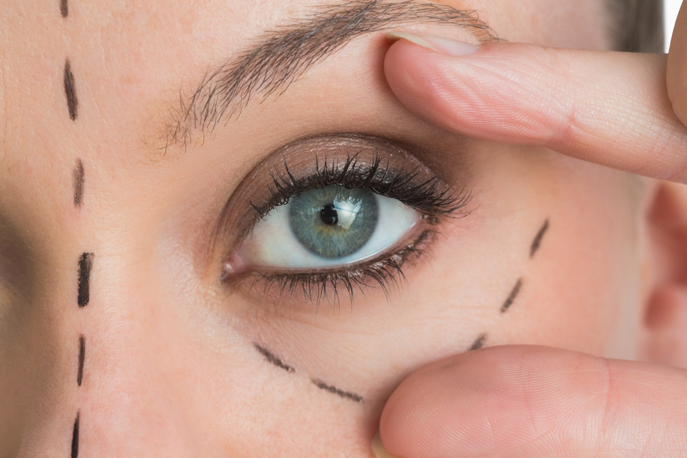 What to Expect When Getting Dermal Fillers