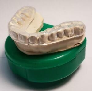Mouth Guard - Landing Dental Spa