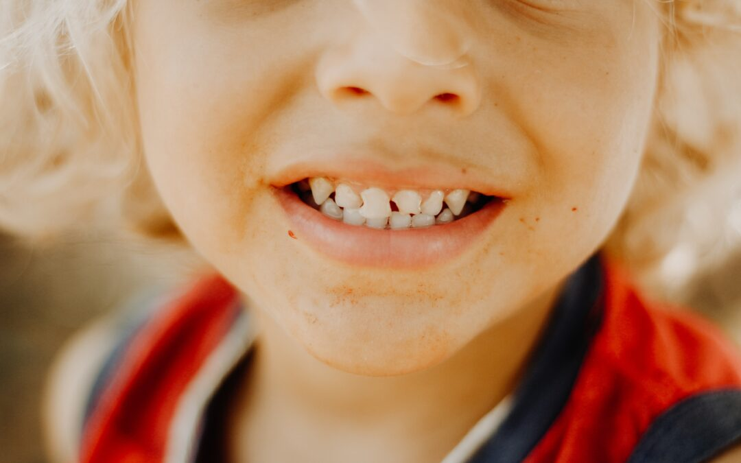 Tips to Keep Your Child from Getting Cavities