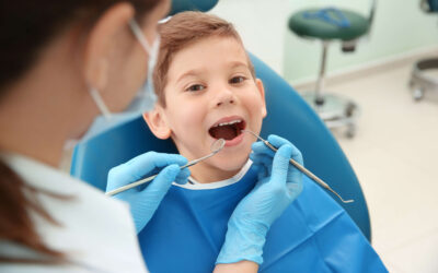 What Are Dental Sealants? Should My Child Have Them?